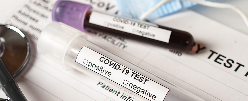 corona-virus-test-sierologico-covid19-cmed-roma_3